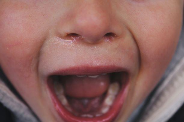 子供が大きく口を開けている写真